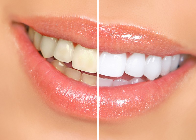 Teeth Whitening  Schwenksville, PA